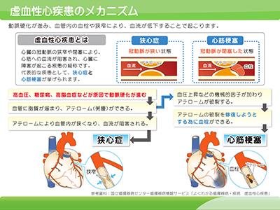虚血性心疾患のメカニズム